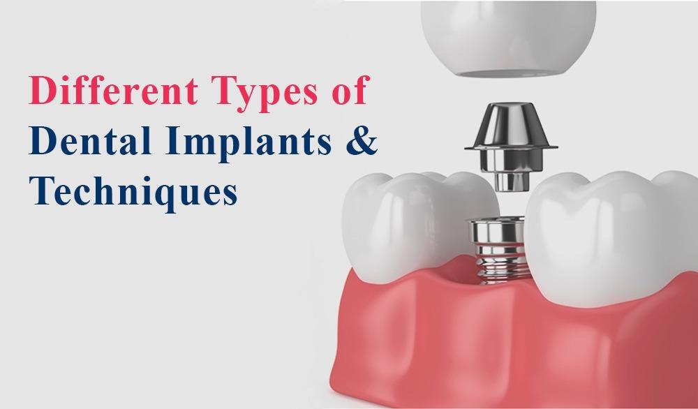 Dental Implants Types of Implants