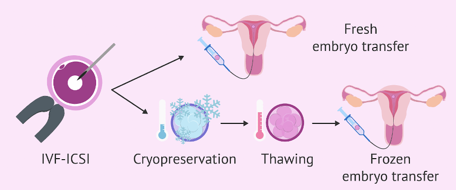 Embryo Transfer- All You Need To Know