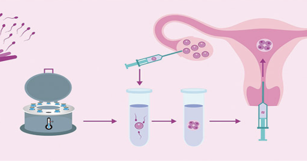 IVF or In Vitro Fertilization- All You Need To Know