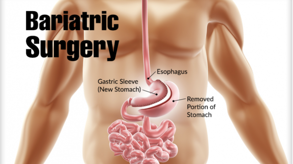 Types of Bariatric Surgery in Mumbai That Are Currently In Use