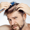 Don't Ignore This Early Sign of Male Pattern Baldness
