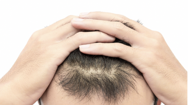 What Are the Best and Most Effective Solutions for Male Hair Loss?