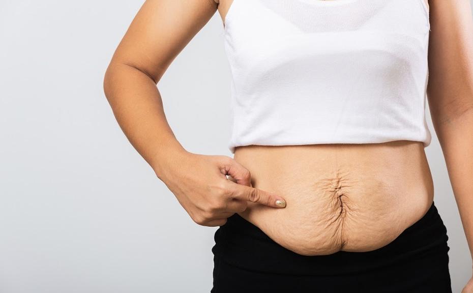 Bariatric Surgery for Weight Loss - Dr. Samrat Jankar