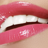The Pros And Cons Of Teeth Whitening