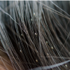 Which Natural Lice Treatment You Should Use