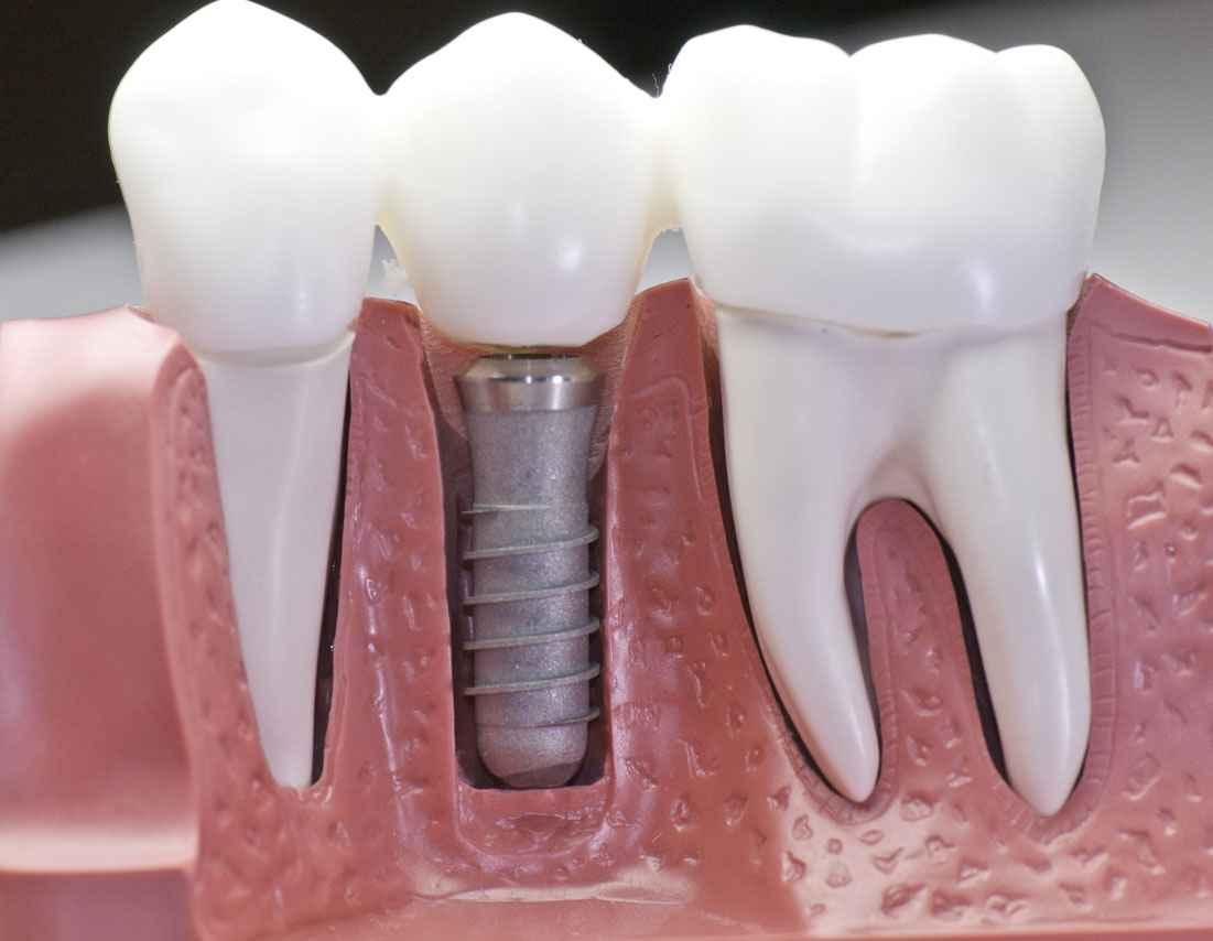 What Are the Types of Dental Veneers?